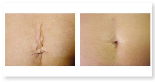 Correzione cicatrici post acneiche e post traumatiche
