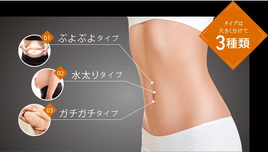 肥満のタイプは三種類 ぷよぷよ肥満 水太り肥満 ガチガチ肥満