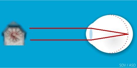 Myopie noncorrigée, vision de loin floue (Image: ASO)