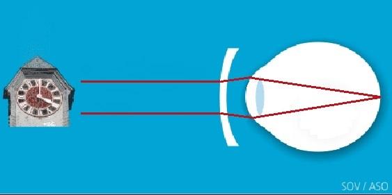 Myopie corrigée, bonne vision à toute les distances (Image: ASO, modifiée)