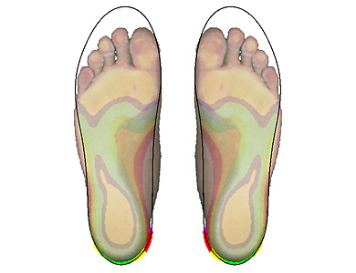 2D-measurement and selected insole shown overlapped