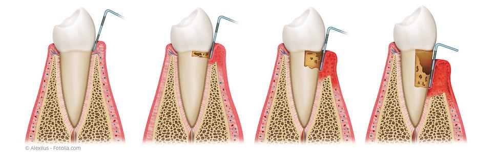Wie sich eine Parodontose entwickelt. (© Alexilus - Fotolia.com)