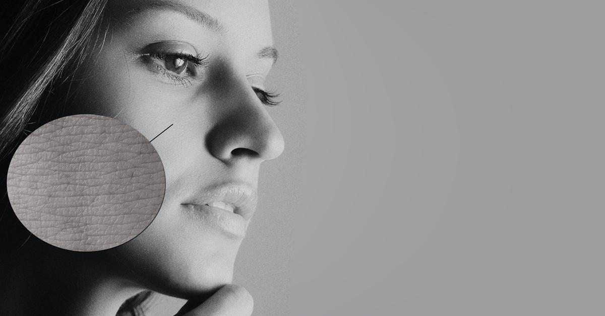 13 tips voor een droge huid