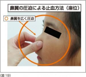 ごとう耳鼻咽喉科:鼻血
