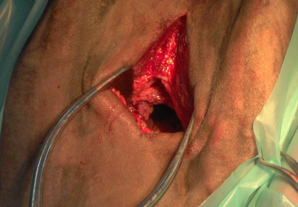 Cirugia respiratoria : Correccion cornage
