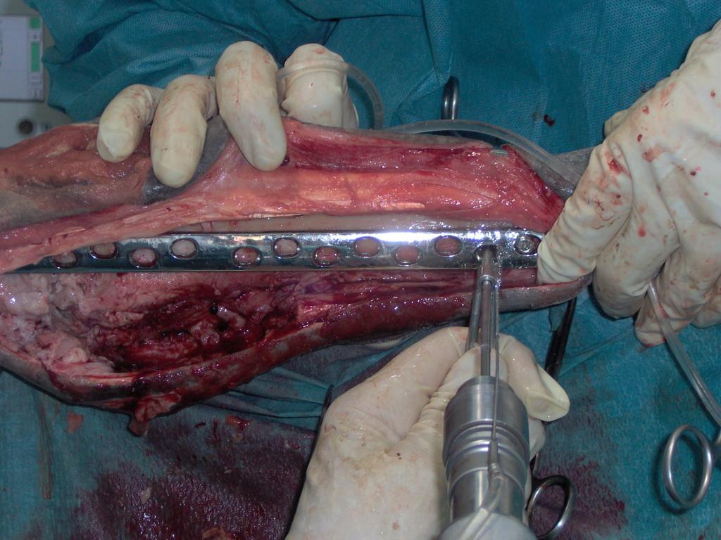 Traumatologia : Correccion fracturas
