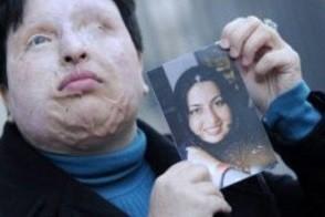 Der international aufsehenerregende Fall Ameneh   Bahramis hat ein humanes Ende gefunden. Die 32-jährige   Iranerin erblindete, nachdem ihr ehemaliger Kommilitone   Madschid Mowahedi 2004 ein Säurenat