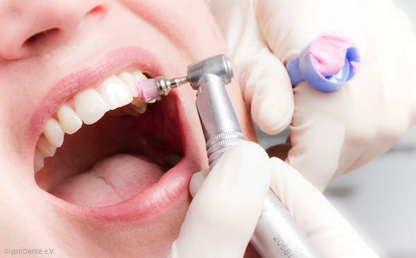 Politur der Zähne für glatte Oberflächen bei der professionellen Zahnreinigung