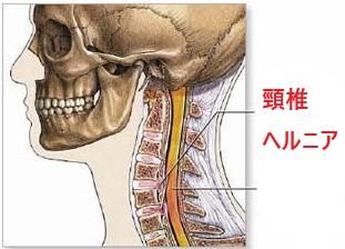 ドクターバンカイロプラクティック:頸椎ヘルニア