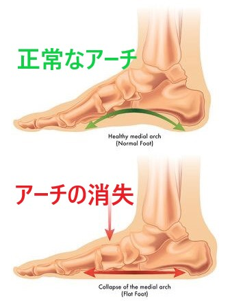 ドクターバンカイロプラクティック:Dr.Ban Chiropractic in Osaka:偏平足