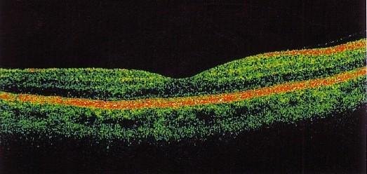 Foto della zona maculare all'OCT.