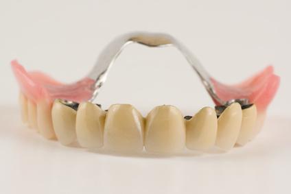 Teil-Prothese, wenn noch ein Teil der Zähne vorhanden ist, um diesen zu befestigen