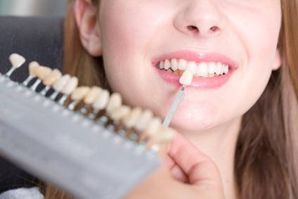 Ästhetische Korrekturen - Farbanpassung der Zähne