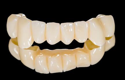 Möglichst naturgetreue Nachbildung von verlorenen Zähnen