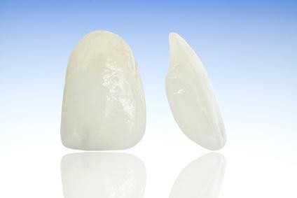 Eine Keramik-Verblenschale (Veneer) ist hauchdünn und wird auf den Zahn aufgeklebt und erhält daher eine große Stabilität