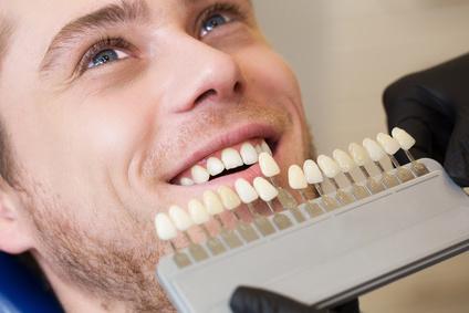 Zahnersatz sollte farblich an die eigenen Zähne angepasst werden um natürlich zu wirken