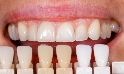 Viele Menschen wünschen sich hellere Zähne