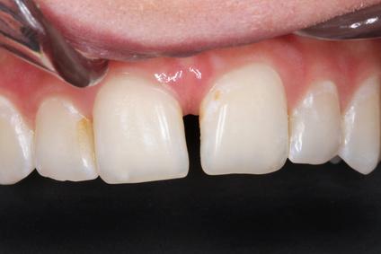 Auffüllen von Zahnlücken im Schneidezahnbereich mit Kompositfüllungen