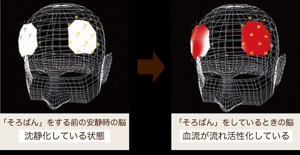 そろばんをする前の安静時の脳からそろばんをしている時の脳の血流が活性化している写真