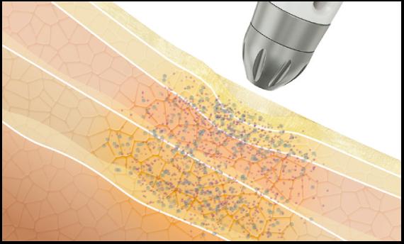 数回の施術後、細胞分裂や皮膚再生などを促進する有効成分が長期にわたり定着します。