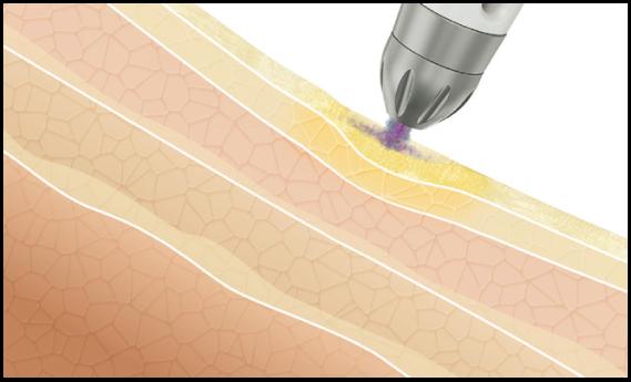 形成されたマイクロユニットは、一定周波に同調させ超音速で皮膚に適用されます。