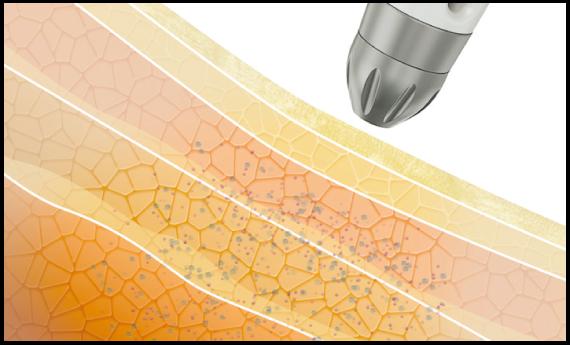 上部皮膚層を拡張させ、深部皮膚層に有効成分を浸透させるためのゲートウェイを作り出します。