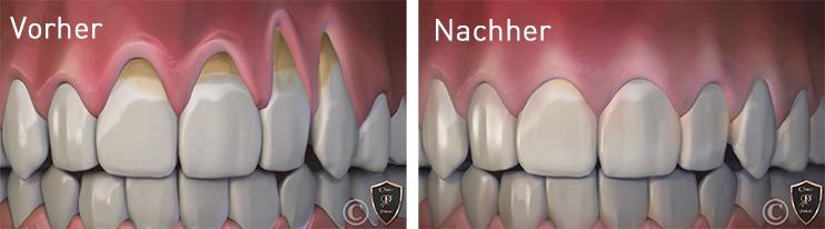 Zahnfleischrückgang und Zahnfleischlifting - Vorher und Nachher