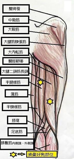 肉離れの起こりやすい部位=好発部位