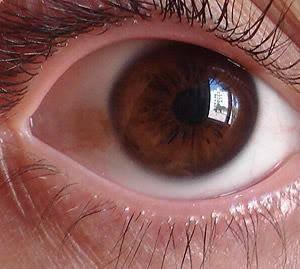 Me salio un lunar rojo en el ojo