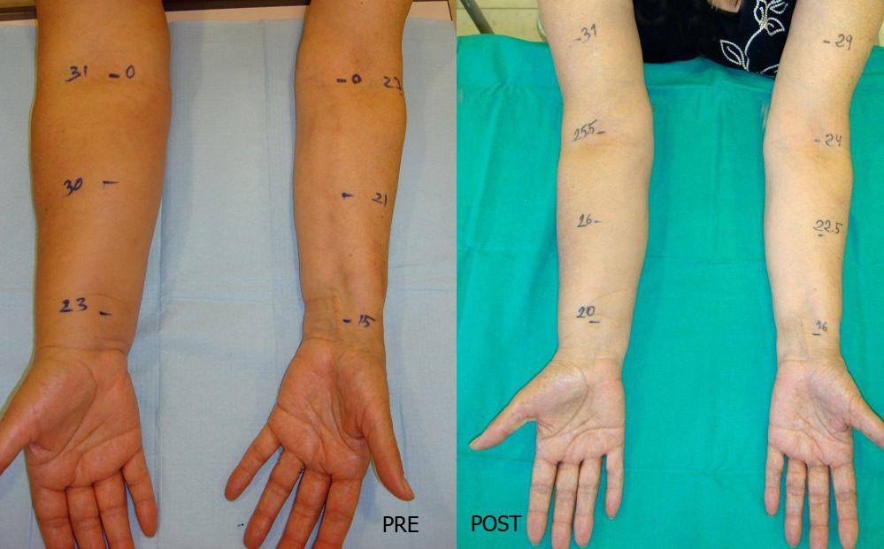 Linfedema postmastectomía