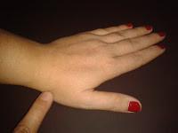 Artrosis del pulgar