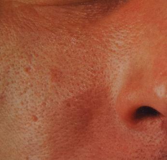закупоренные и расширенные поры, неровная текстура, локальный блеск, покраснения и микровоспаления кожи, Себоре́я (лат. sebum (сало) и греч. rrhea (теку)) — болезненное состояние кожи.
