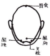 headache2.JPG (10008 バイト)