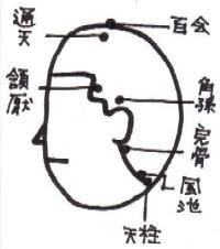 headache1.JPG (12570 バイト)
