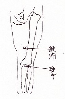 swelling_of_the_leg2.jpg (10863 バイト)