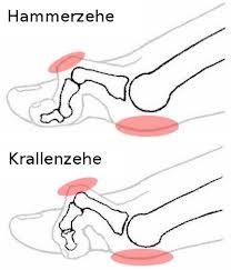 Darstellung von Hammer- und Krallenzehe