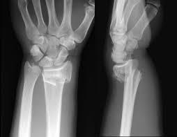 Röntgenbild eines Handgelenksbruchs