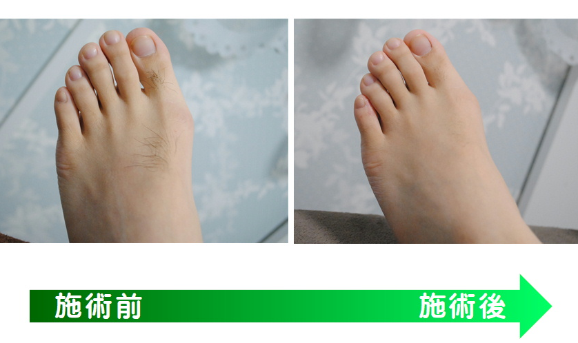 25歳・足の甲、指