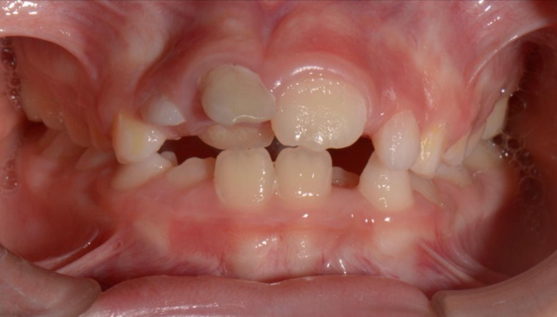 foto intraorale delle arcate dentali