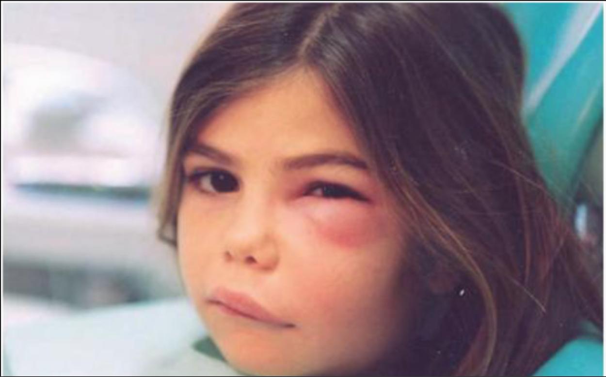 Ascesso dentale diffuso al viso