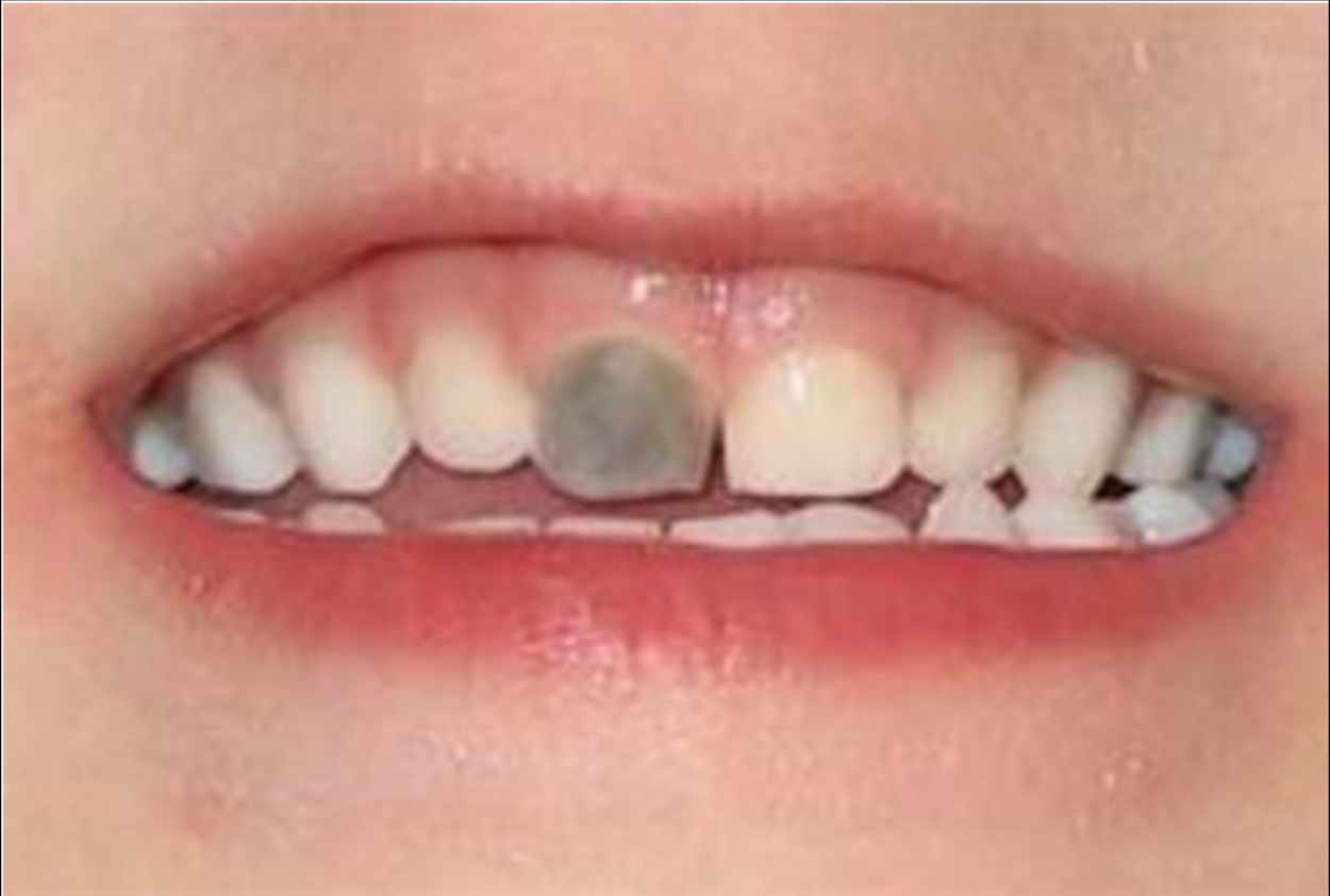 cambiamento di colore di un dente da latte dopo una caduta