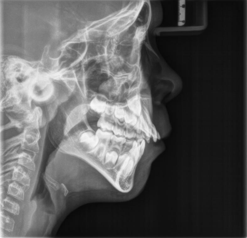radiografia latero laterale