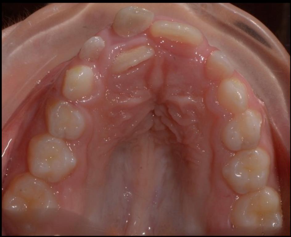 affollamento denti arcata superiore