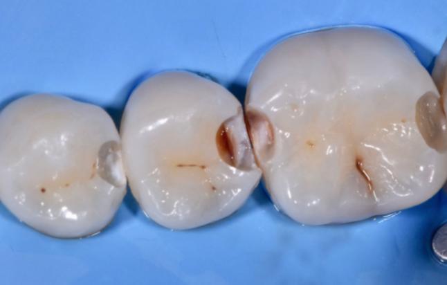 carie tra dente e dente