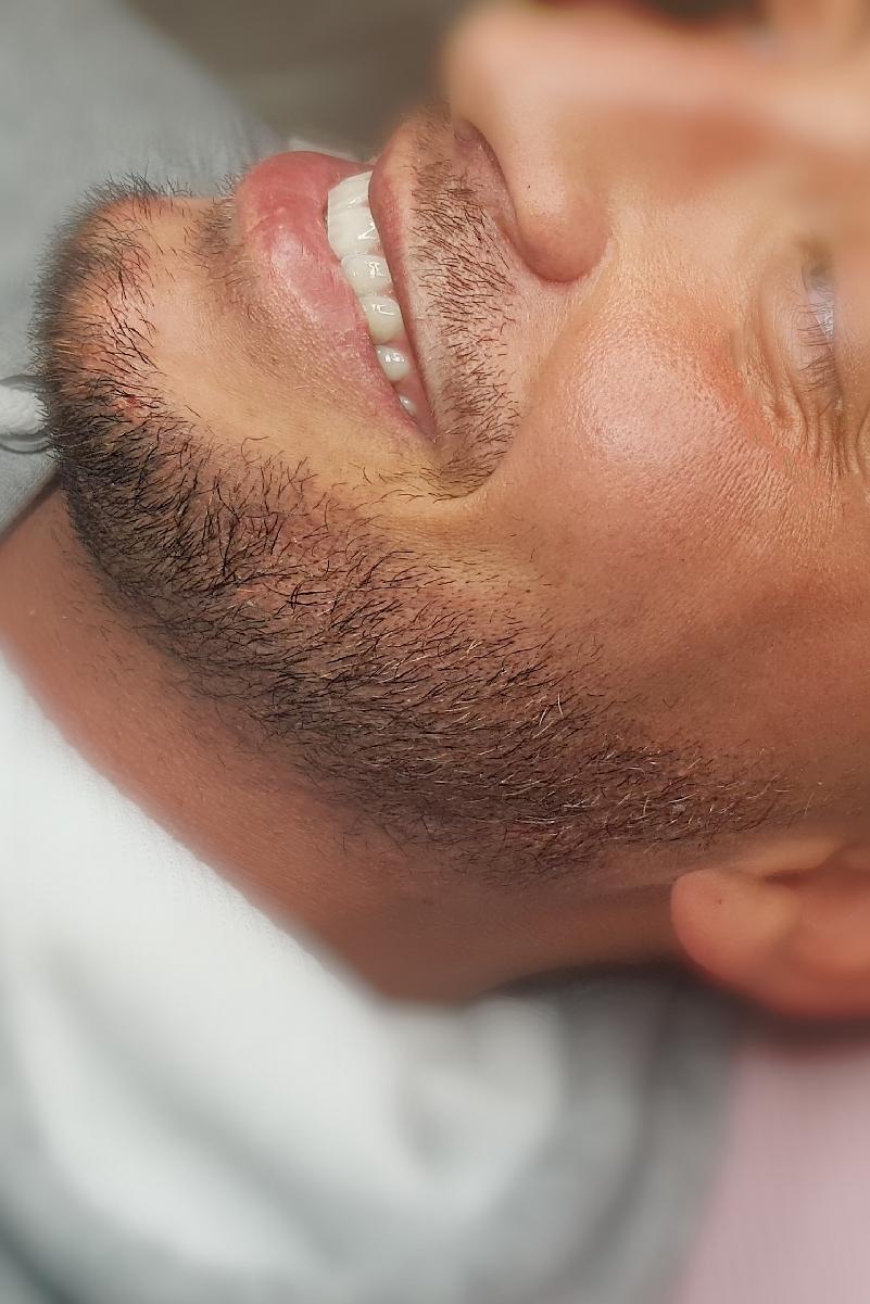 Zagęszczenie zarostu męskiego makijażem permanentnym.