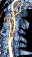 この画像はCTとMRIを合成して作成しました、造影剤は使用していません、手術も問題なく、腎臓の機能悪化もなく退院しました