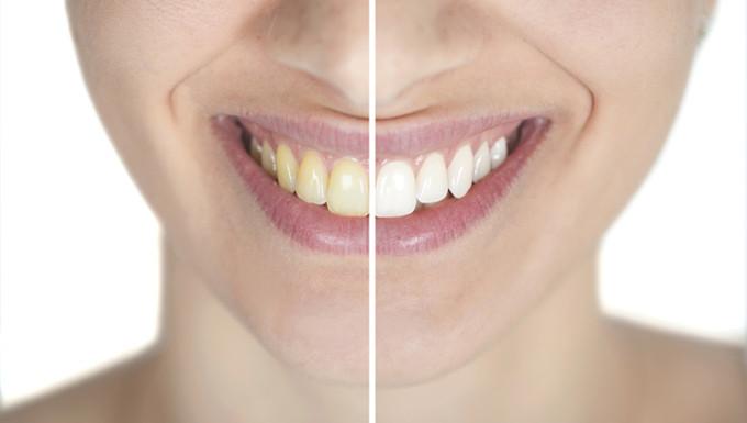 Bleaching wird am besten professionell beim Zahnarzt durchgeführt.