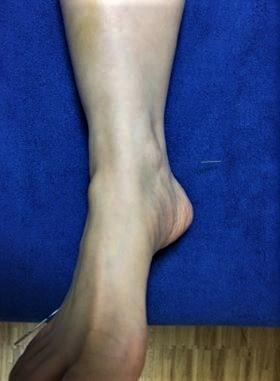 あじさい鍼灸マッサージ治療院 足の鍼の様子