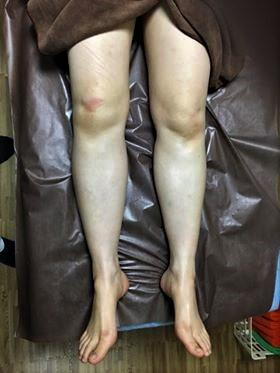 あじさい鍼灸マッサージ治療院 術後の足の様子