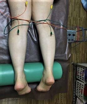 あじさい鍼灸マッサージ治療院 足の鍼通電の様子